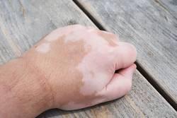 Vitiligo oder Weißfleckenkrankheit