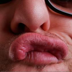 Dicke Lippe