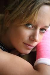 Portrait einer jungen Frau mit Arm in Gips