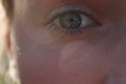 Augenglanz