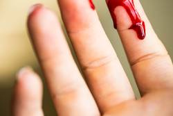 Finger cut, bleeding injured with knife