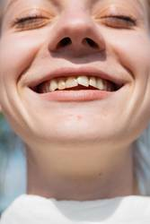 smiling girl with teeth defects