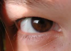 Auge mit Kontaktlinse