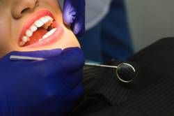 Smiling pretty woman is having her teeth examined by the dentist