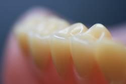 Zahnreihe